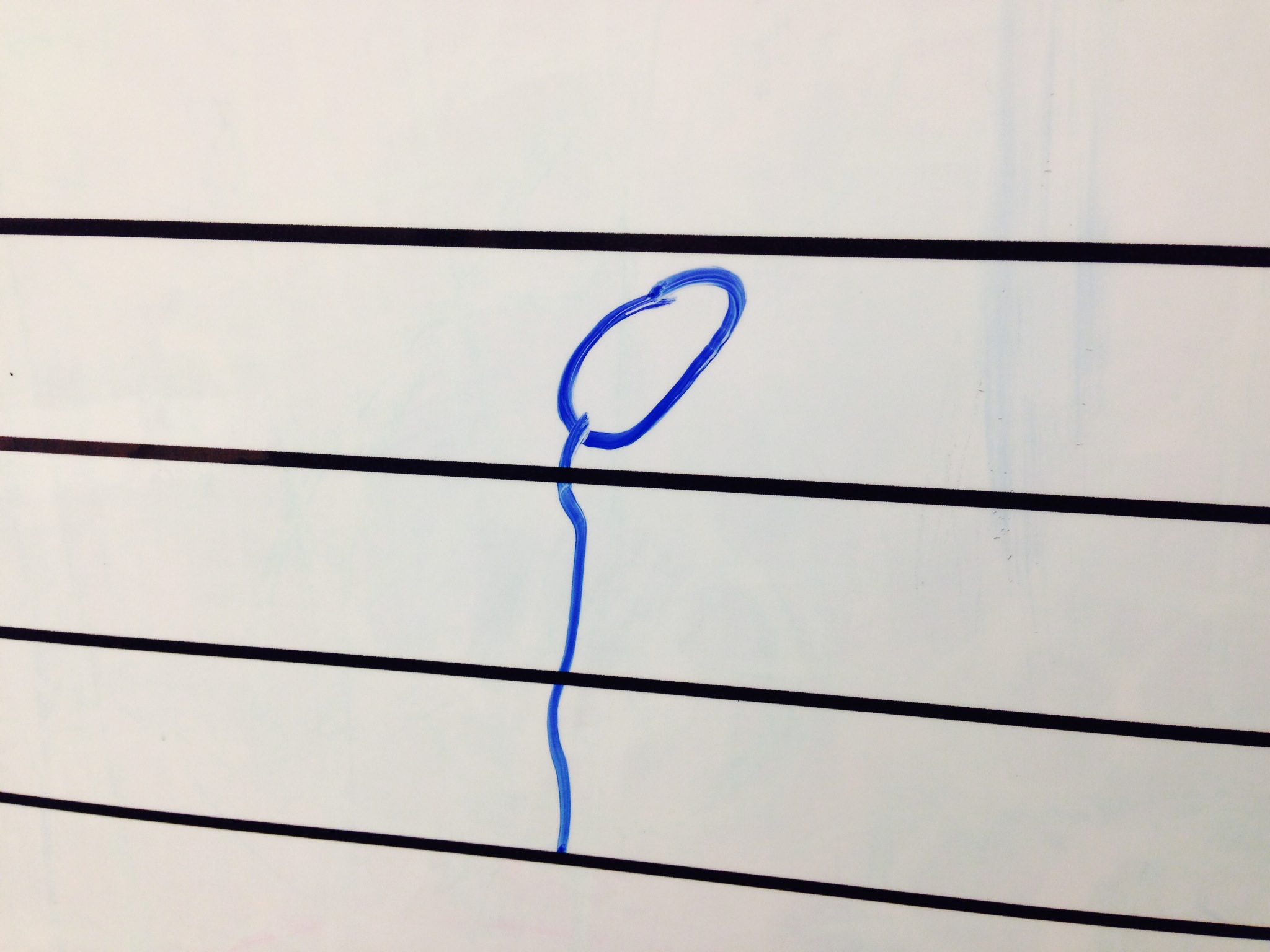 Half Note or Sperm?